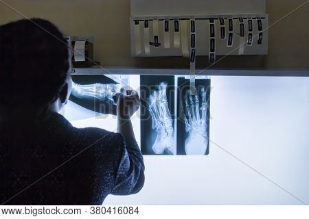 African radiologist doctor checking a foot radiography