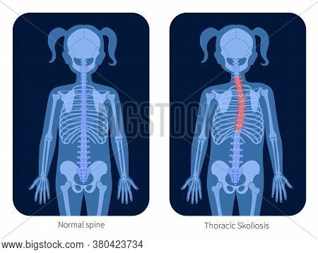 Normal Spine And Thoracic Scoliosis In Girl Body. Xray Flat Vector Illustration. Backbone, Joint And