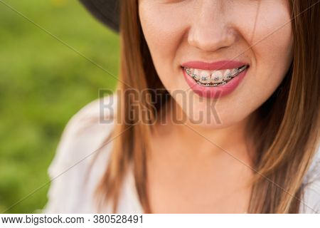 Smile Not Ashamed Of Dental Braces, Smile Of A Woman Close-up, Self-ligating Braces. High Quality Ph