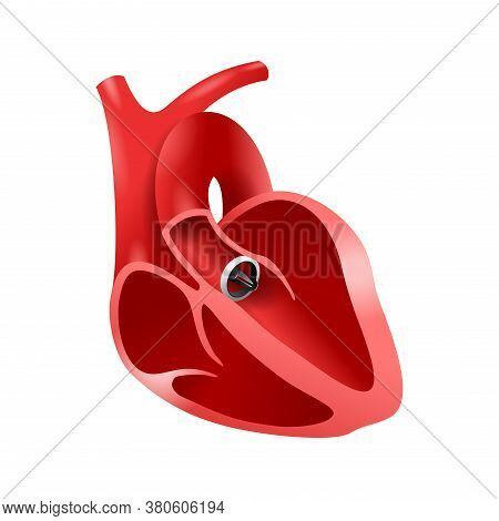 Artificial Heart Valve (aortic Bileaflet) Implanted Into Heart To Replace A Disfunctional Native Val
