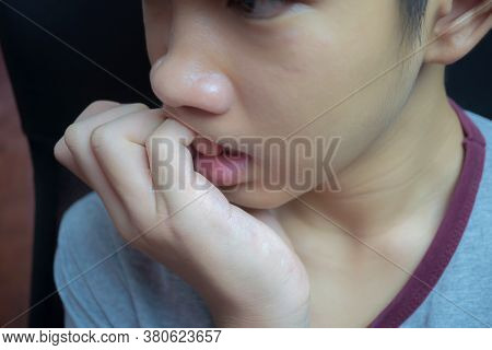 The Boy Is Biting The Nail. The Cause May Be Due To Stress The Child Biting The Nail Should Immediat