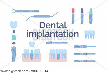 Dental Tools For Dental Implants. Medical Metal And Titanium. Vector Illustration, In A Flat Style.