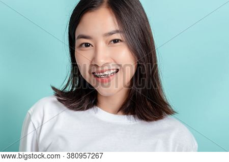 Dental Braces Of Young Asian Woman Wearing Braces Beauty Smile With White Teeth Increase Confidence