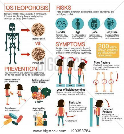 Osteoporosis infographic Health information and cartoon designed Illustration vector