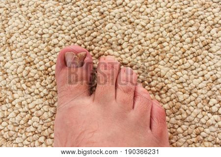 Close up damaged toenail on the carpet