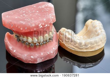 Human jaw or teeth model with metal wired dental braces and closeup