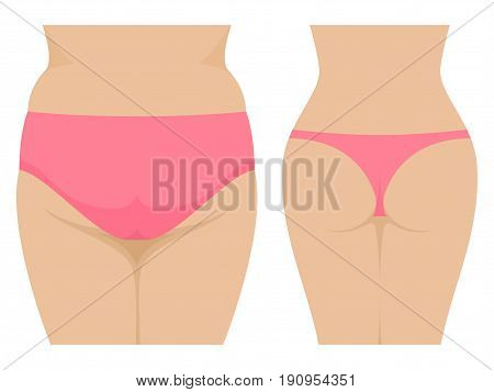 Vector illustration of a female fat and thin ass. Isolated on white background. Fatty ass before and after losing weight. Back view. Flat style.