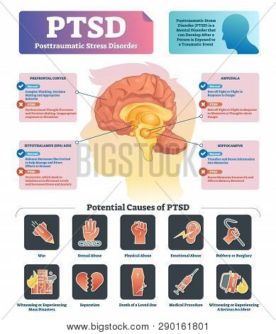 Ptsd Vector Illustration. Labeled Anatomical Mental Disorder Causes Scheme. Compared Healthy And Pro