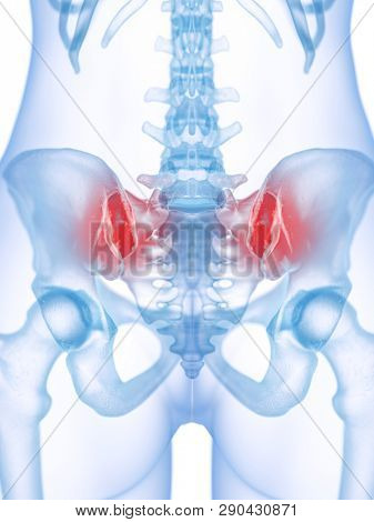 3d rendered medically accurate illustration of a painful sacroiliac joint