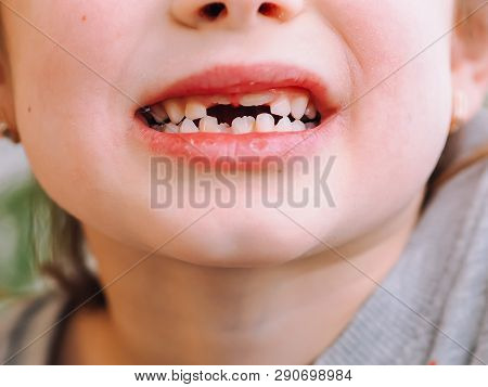 The Child Has A Milk Tooth And A New Adult Curve Tooth. Treatment And Care Milk Teeth In Children.