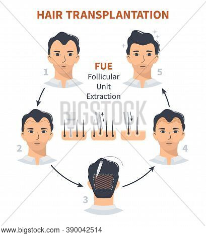 Stages Of Hair Transplantation Fue Follicular Unit Extraction. Treatment Of Baldness, Alopecia, Mens