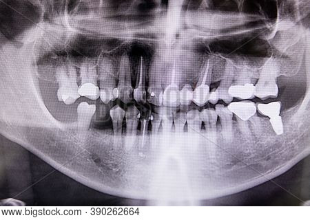 Digital X-ray Of Teeth Profile With Root Canal, Fillings And Orthodontic Implant