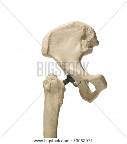 Human hip Replacement