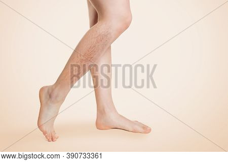 Smooth Female Legs, With Varicose Veins And Swelling On The Lower Leg. Beige Background. Copy Space.