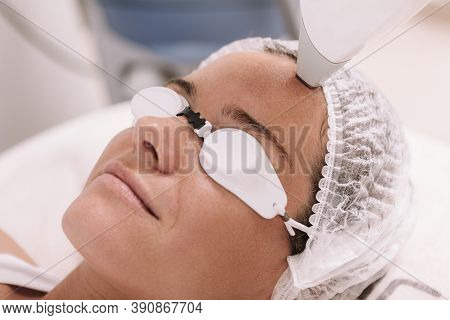 Cropped Close Up Of A Mature Woman Smiling, Getting Facial Hair Removed With Laser At Beauty Clinic.