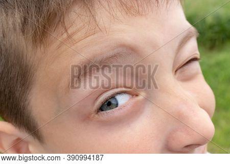 A Curious Boy Peeping With One Eye, Spy Eye Watching