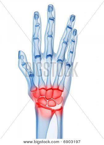 skeletal hand - arthritis