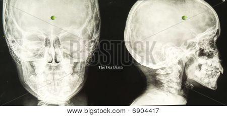 Pea Brain