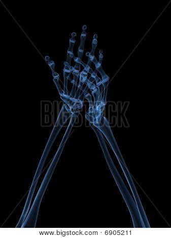 x-ray hands - arthritis