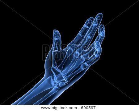 x-ray hand - arthritis