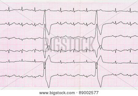 Tape Ecg With Ventricular Premature Beats (quadrigeminia)