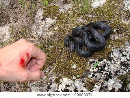 Real snake bite