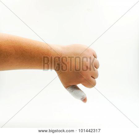 Splint Finger A Broken Bone Hand Injured