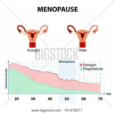 Menopause Or Climacteric
