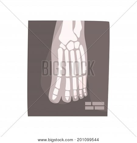 X ray image of human foot cartoon vector Illustration on a white background