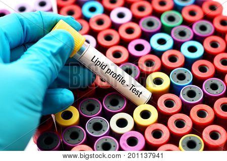 Test tube with blood sample for lipid profile test