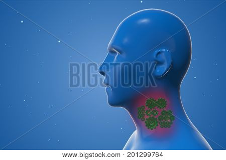 Mechanism To Protect A Sick Human Throat 3D Illustration