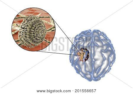 Aspergilloma of the brain and close-up view of fungi Aspergillus, 3D illustration. An intracranial lesion produced by fungi Aspergillus in immunocompromised patients poster