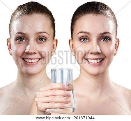Young woman holding glass of water. Cleansing skin concept. Before and after cleansing.