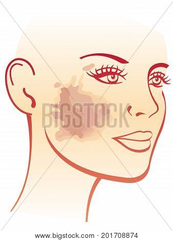 simple vector medical illustration of the symptoms of melasma