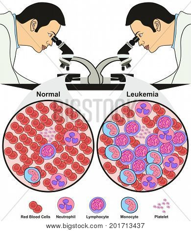 Leukemia Diagnosis Diagram showing doctor in lab looking through microscope diagnoses a normal blood sample while other is affected with disease for medical science education and healthcare awareness