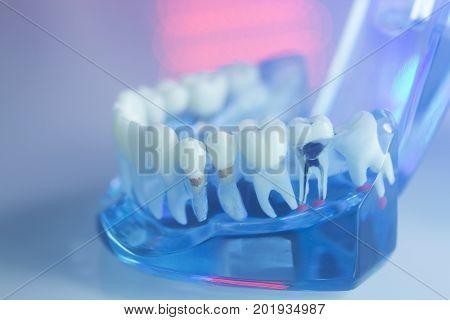 Dental Teeth Dentists Model