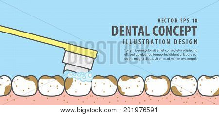 Banner Brushing Very Dirty Teeth And Gum Illustration Vector On Blue Background. Dental Concept.