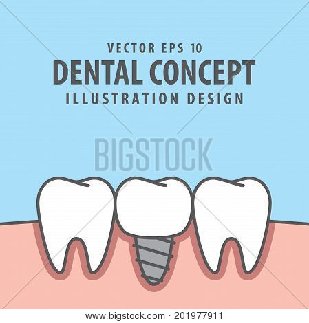 Implant Tooth Between Real Teeth Illustration Vector On Blue Background. Dental Concept.