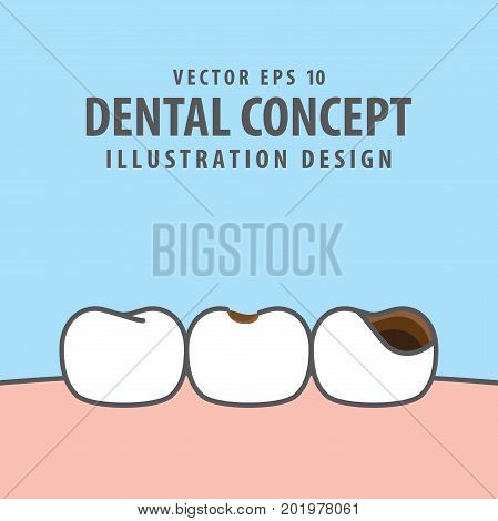 Caries And Cavity Teeth Illustration Vector On Blue Background. Dental Concept.