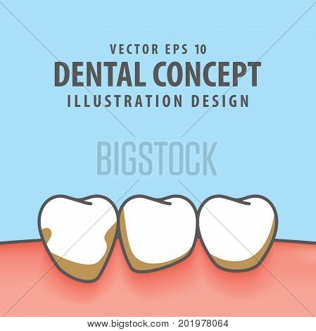 Periodontitis Illustration Vector On Blue Background. Dental Concept.