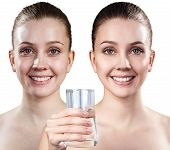 Young woman holding glass of water. Cleansing skin concept. Before and after cleansing. poster