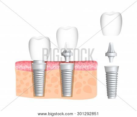 Realistic Dental Implant Structure With All Parts: Crown, Abutment, Screw. Dentistry. Implantation O
