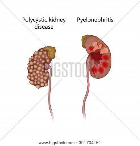 Polycystic Kidney Disease, Comparison With Pyelonephritis. Infection, Infected, With Cysts. Realisti