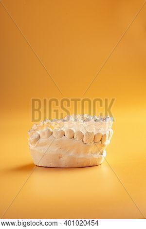 Inivisalign Braces Or Aligner. A Way To Have A Beautiful Smile And White Teeth.invisible Invisalign