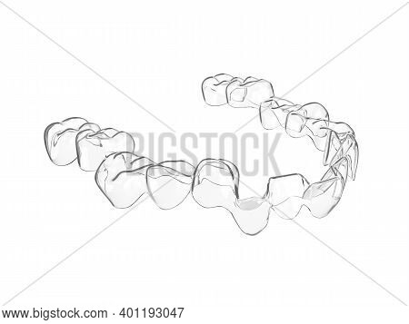 3D Render Of Invisalign Removable Aligner