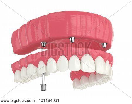 3d Render Of All On 4 Dental Implants Treatment Over White