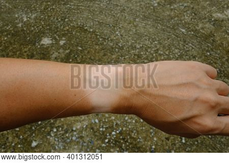 Wrist Mark Skin Without Sunburn From Wristwatch On Left Hand Isolated