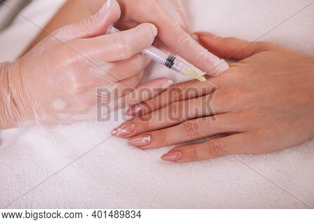 Cropped Close Up Of A Woman Getting Rejuvenating Filler Injections In Her Hand. Beautician Injecting