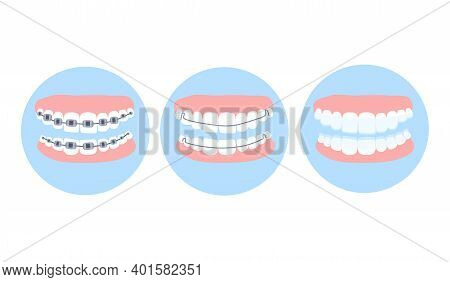 Dental Metal Braces,essix Aligner And Hawley Retainer On Human Teeth. Choice Concept.orthodontic Sur