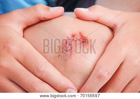 Child holding their knee after getting a scrape